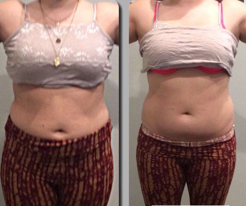 Body Sculpting Amp Weight Loss Clinic In Las Vegas Active